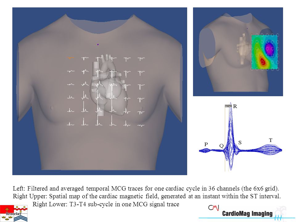Left: Filtered and averaged temporal MCG traces for one cardiac cycle in 36 channels (the 6x6 grid).