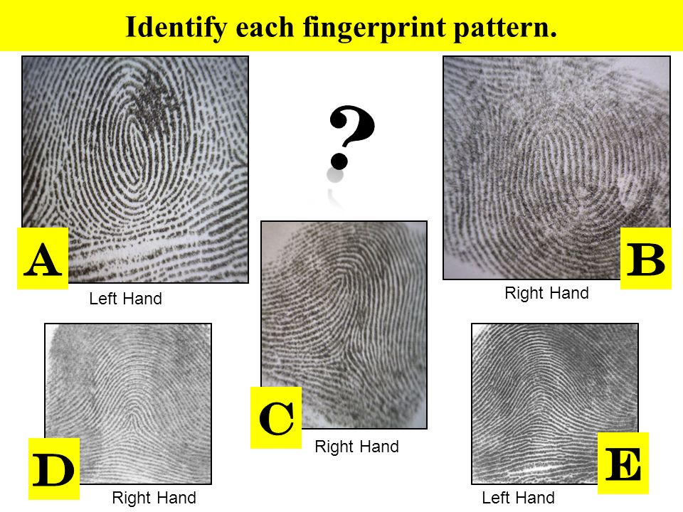 Identify each fingerprint pattern. Right Hand Left Hand Right Hand