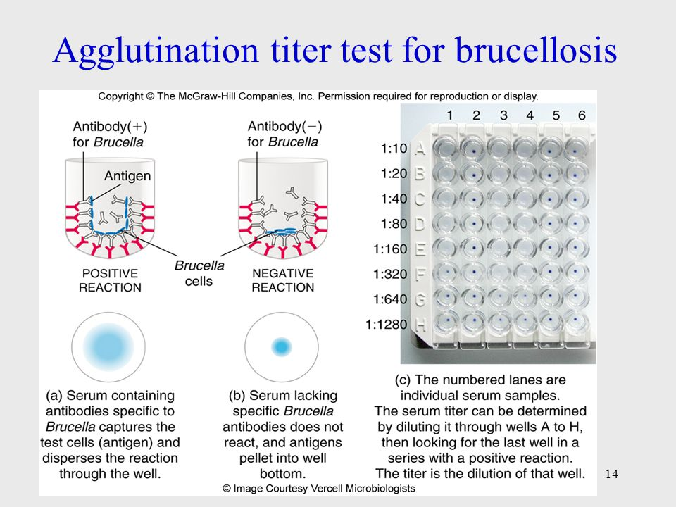 Agglutination titer test for brucellosis 14