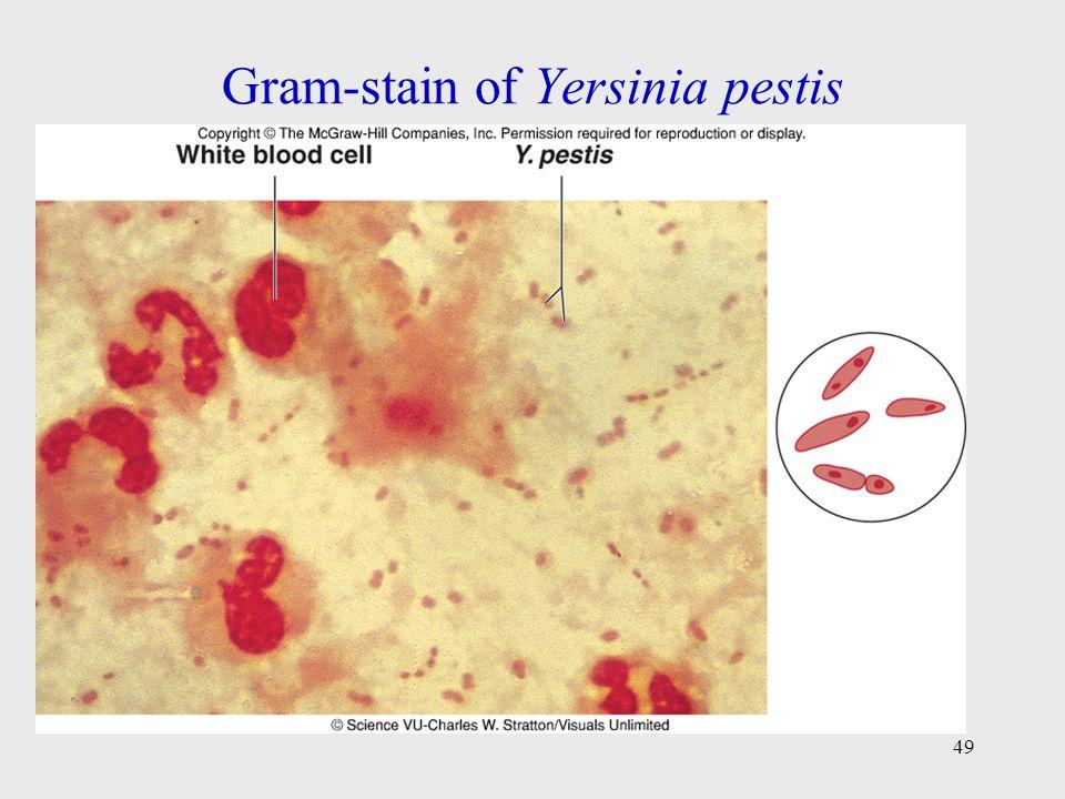 Gram-stain of Yersinia pestis 49