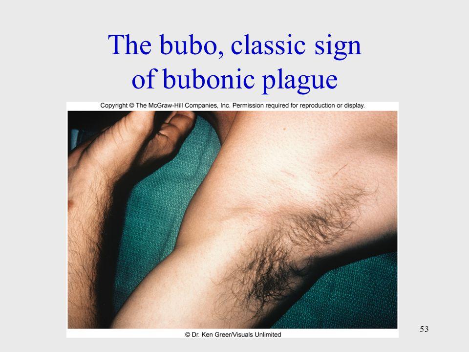 The bubo, classic sign of bubonic plague 53