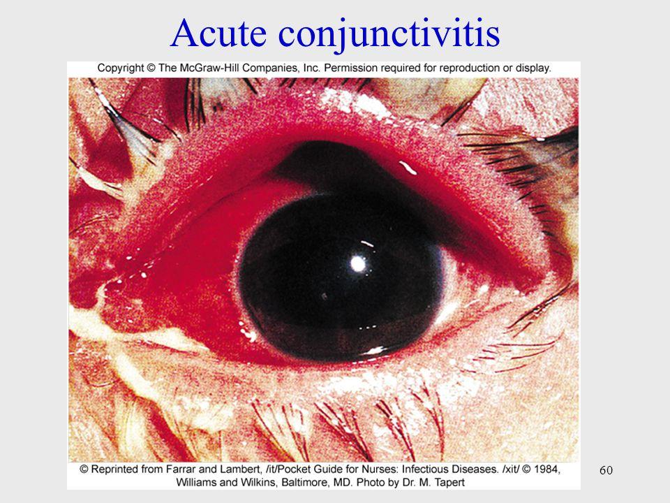 Acute conjunctivitis 60