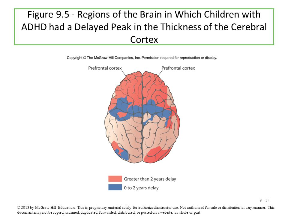 9 - 17 Figure 9.5 - Regions of the Brain in Which Children with ADHD had a Delayed Peak in the Thickness of the Cerebral Cortex © 2013 by McGraw-Hill Education.
