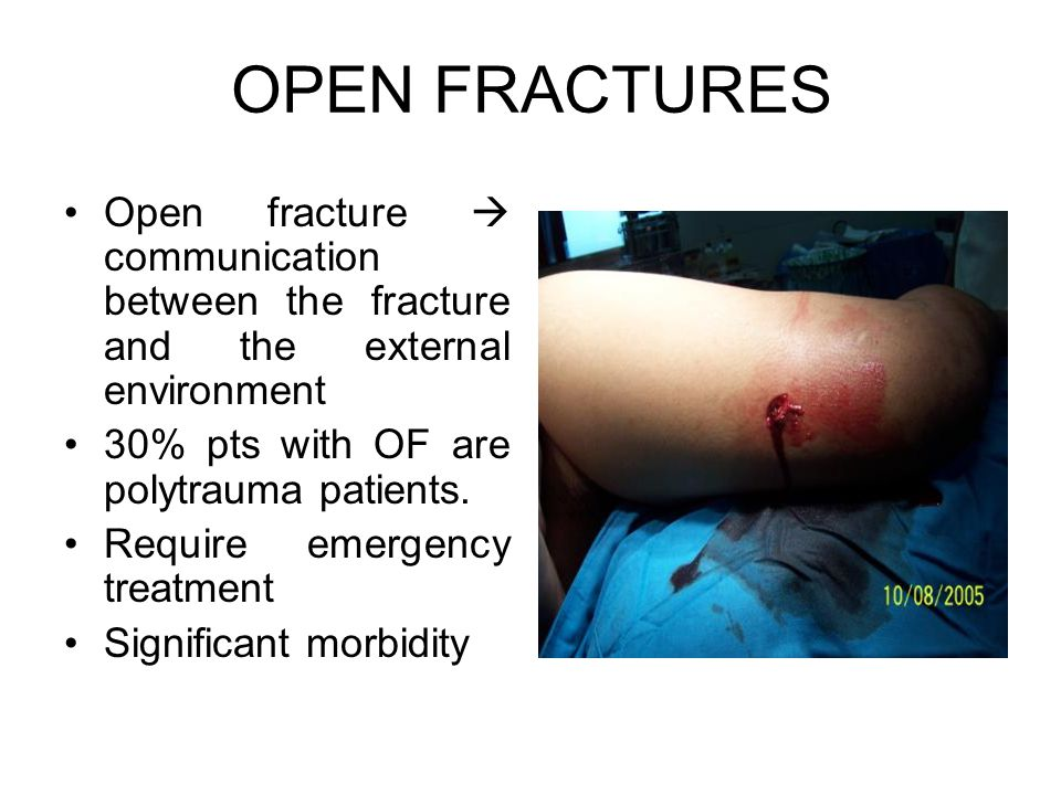 Open fracture  communication between the fracture and the external environment 30% pts with OF are polytrauma patients. Require emergency treatment S
