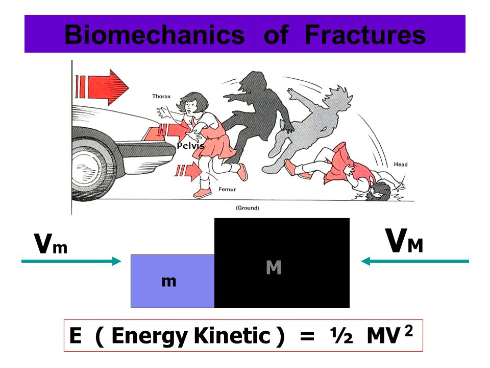 Biomechanics of Fractures E ( Energy Kinetic ) = ½ MV VmVm VMVM m M 2 Pelvis