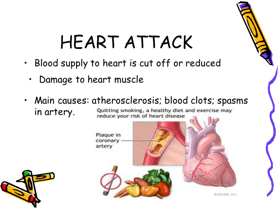 HEART ATTACK Blood supply to heart is cut off or reduced Damage to heart muscle Main causes: atherosclerosis; blood clots; spasms in artery.