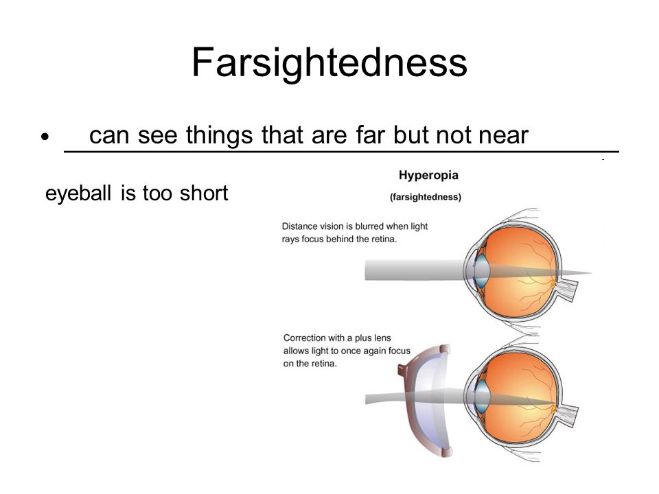 Farsightedness __________________________________ eyeball is too short can see things that are far but not near