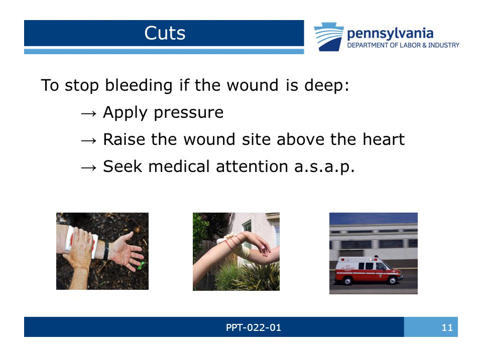 PPT-022-01 11 Cuts To stop bleeding if the wound is deep: → Apply pressure → Raise the wound site above the heart → Seek medical attention a.s.a.p.