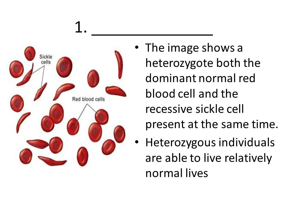 1. ______________ The image shows a heterozygote both the dominant normal red blood cell and the recessive sickle cell present at the same time. Heter