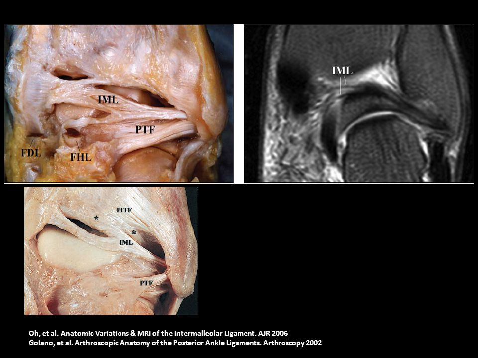 Oh, et al. Anatomic Variations & MRI of the Intermalleolar Ligament. AJR 2006 Golano, et al. Arthroscopic Anatomy of the Posterior Ankle Ligaments. Ar