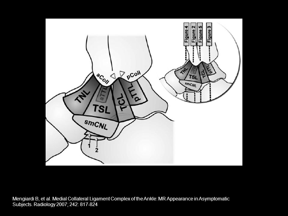 References Robinson P.Imaging of ankle impingement.