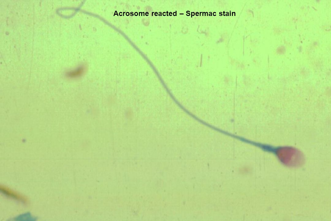 Acrosome reacted – Spermac stain
