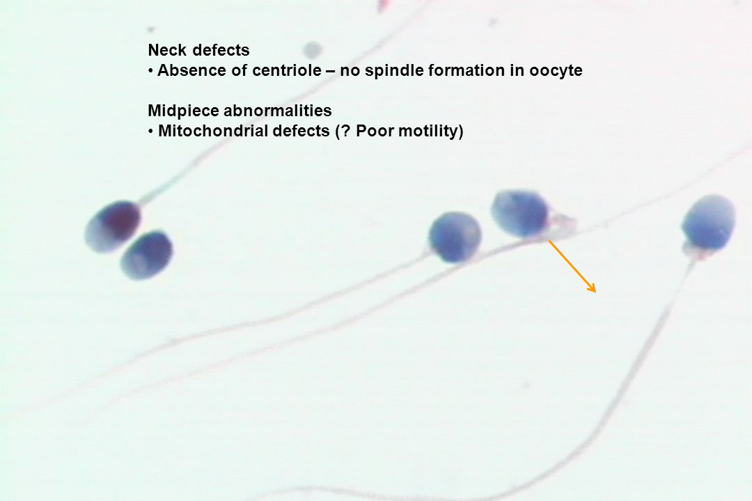 Neck defects Absence of centriole – no spindle formation in oocyte Midpiece abnormalities Mitochondrial defects (? Poor motility)
