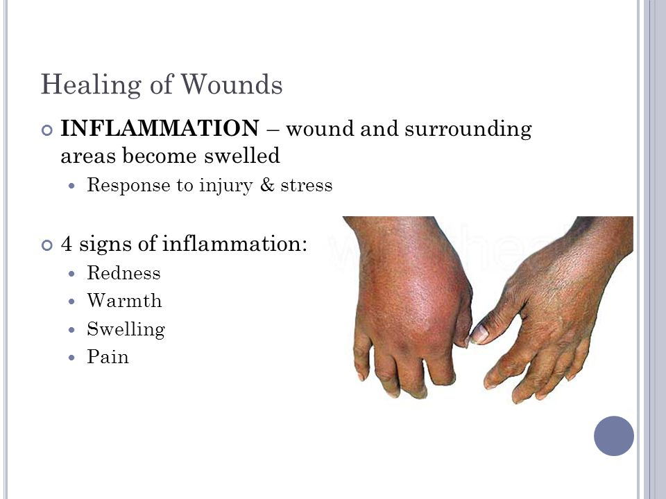Inflammation Redness - caused by increased vasodilatation More blood in area Heat – increased metabolism; WBC's try to destroy invaders