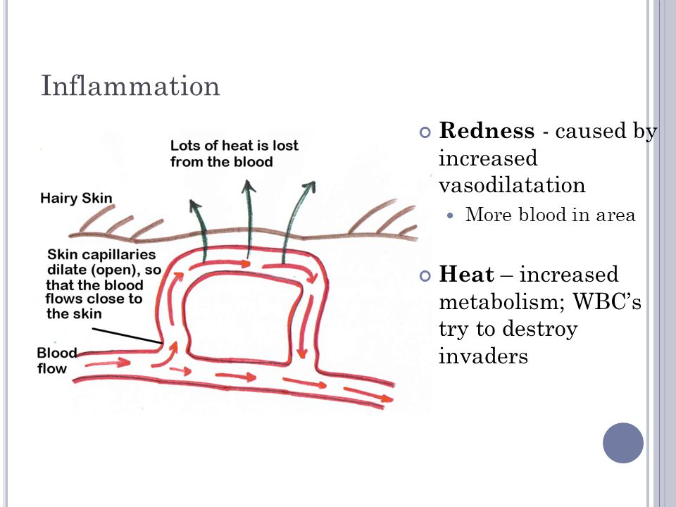 Inflammation Swelling – Fluid in area due to change in osmotic pressure Abnormal build up of fluid called EDEMA Pain –Pressure on nerve endings from fluid