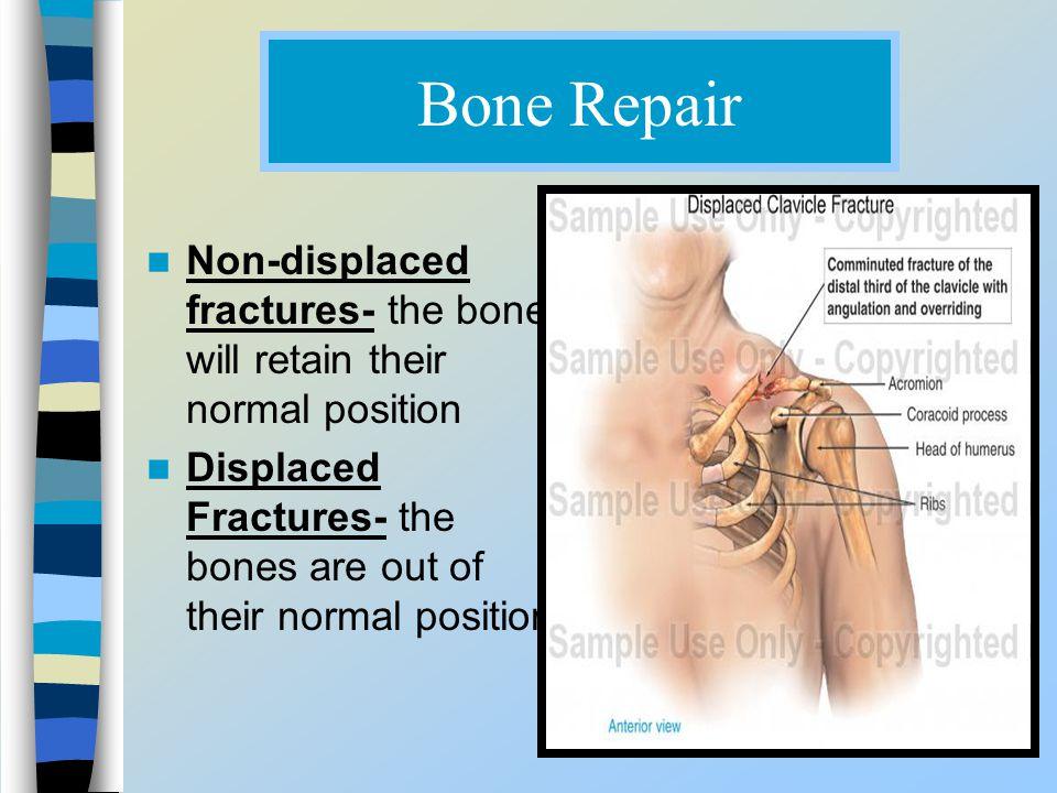 Bone Repair Non-displaced fractures- the bone will retain their normal position Displaced Fractures- the bones are out of their normal position