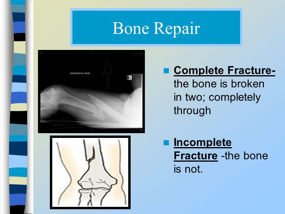 Bone Repair Complete Fracture- the bone is broken in two; completely through Incomplete Fracture -the bone is not.