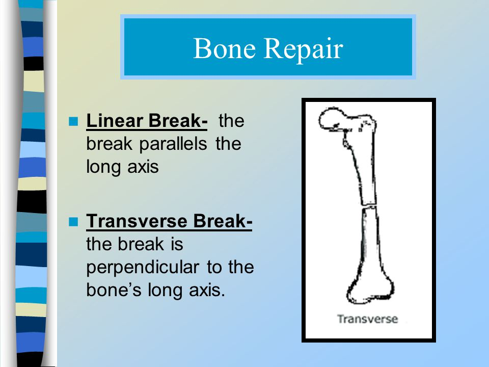 Bone Repair Linear Break- the break parallels the long axis Transverse Break- the break is perpendicular to the bone's long axis.