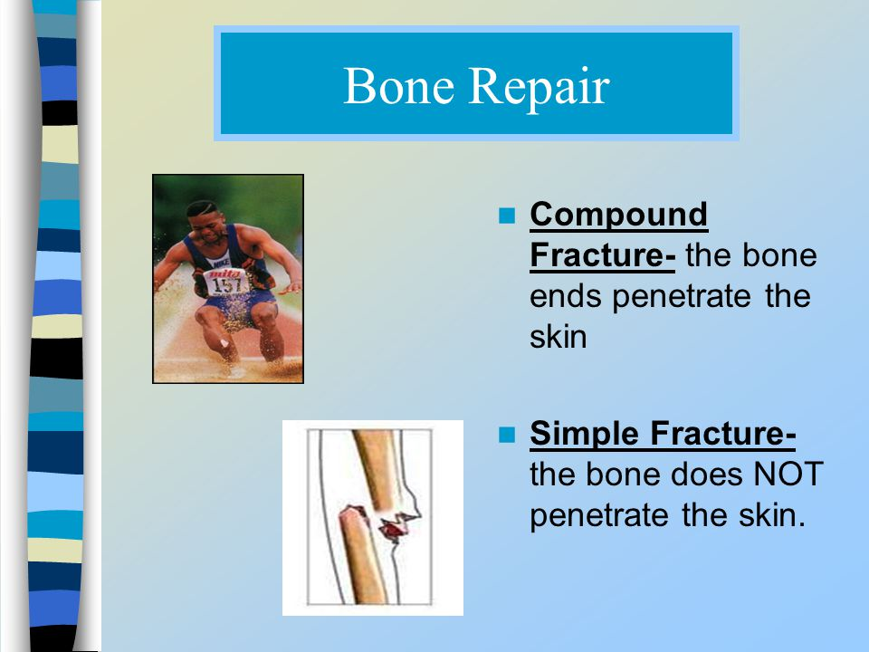 Bone Repair Compound Fracture- the bone ends penetrate the skin Simple Fracture- the bone does NOT penetrate the skin.