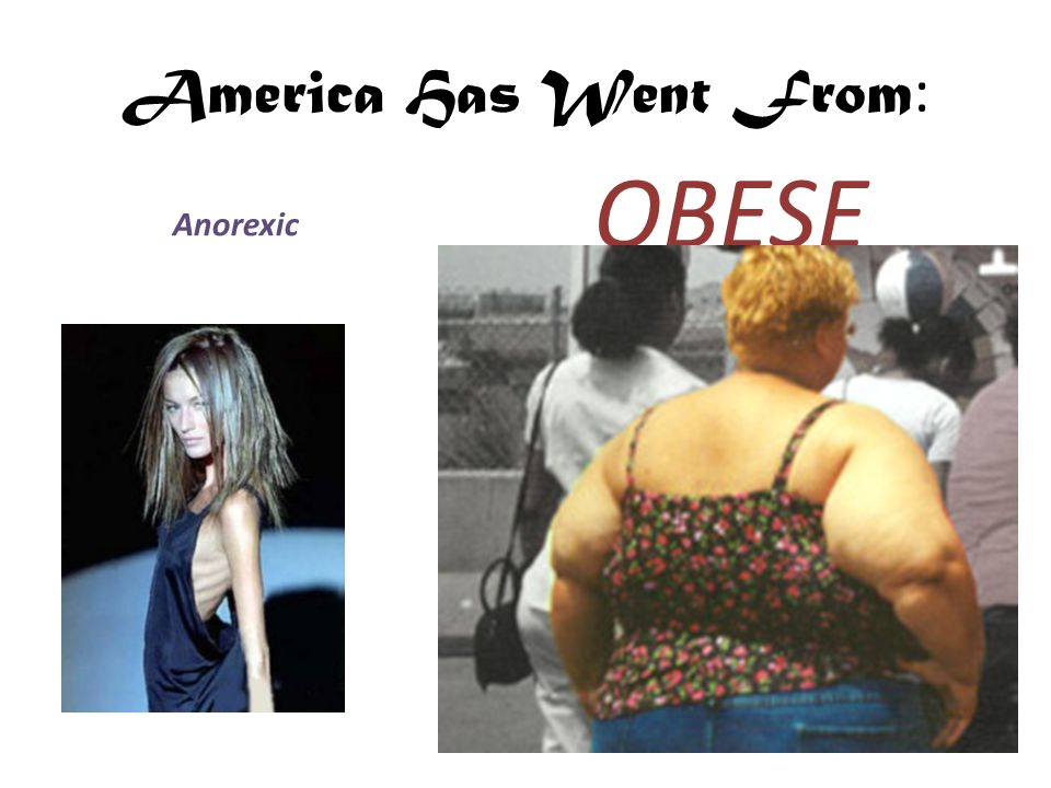 America Has Went From : Anorexic OBESE