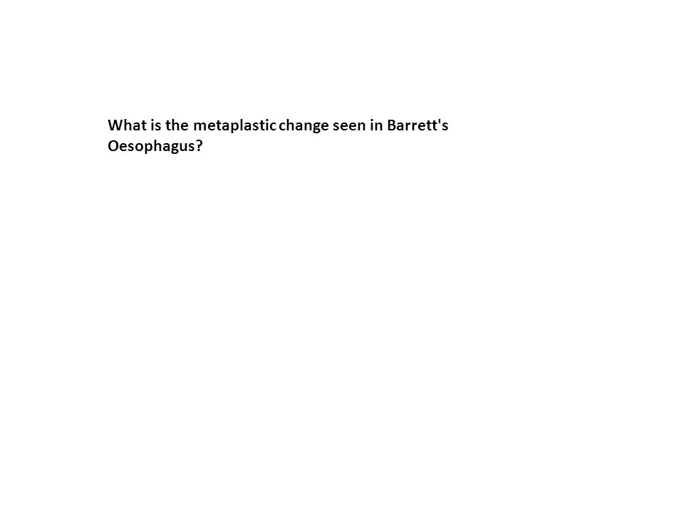 What is the metaplastic change seen in Barrett's Oesophagus?