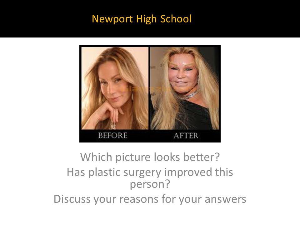 Which picture looks better? Has plastic surgery improved this person? Discuss your reasons for your answers Newport High School