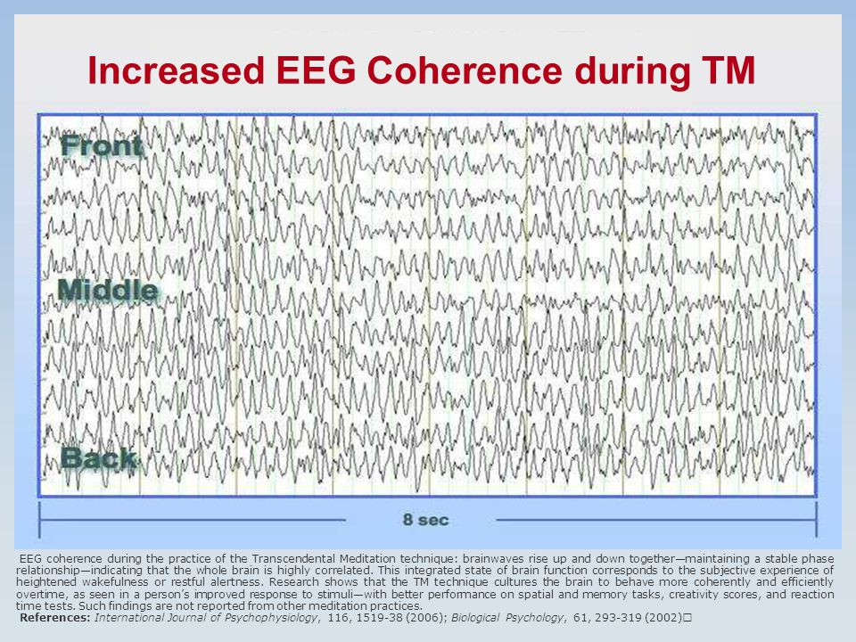 EEG coherence during the practice of the Transcendental Meditation technique: brainwaves rise up and down together—maintaining a stable phase relationship—indicating that the whole brain is highly correlated.