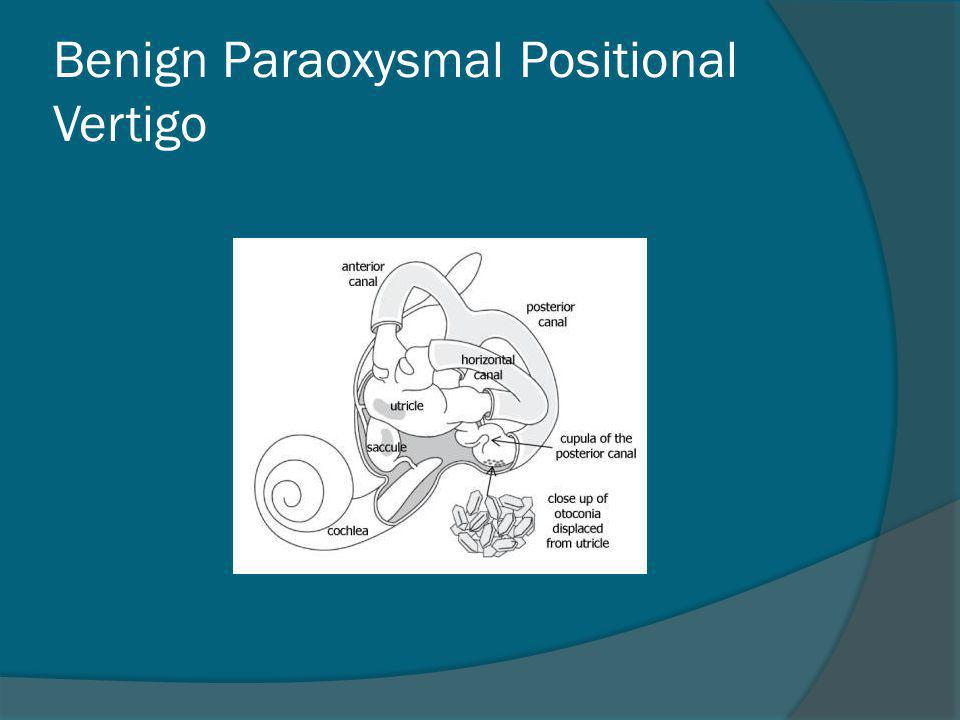 Benign Paraoxysmal Positional Vertigo