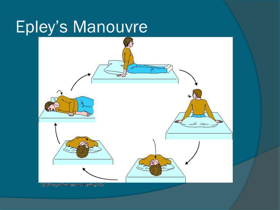 Epley's Manouvre
