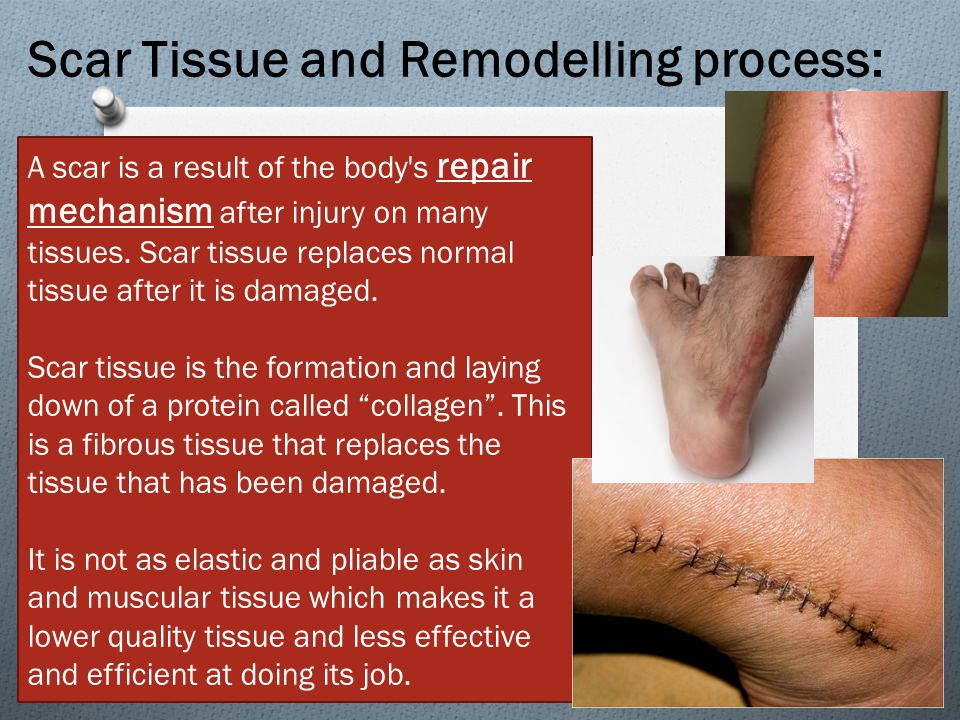 A scar is a result of the body s repair mechanism after injury on many tissues.