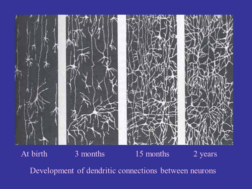 At birth 3 months 15 months 2 years Development of dendritic connections between neurons