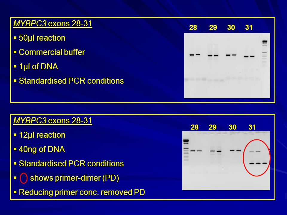 28 29 30 31 MYBPC3 exons 28-31  50µl reaction  Commercial buffer µl  1µl of DNA  Standardised PCR conditions 28 29 30 31 MYBPC3 exons 28-31 12µl reaction  12µl reaction  40ng of DNA  Standardised PCR conditions shows primer-dimer (PD)  shows primer-dimer (PD)  Reducing primer conc.