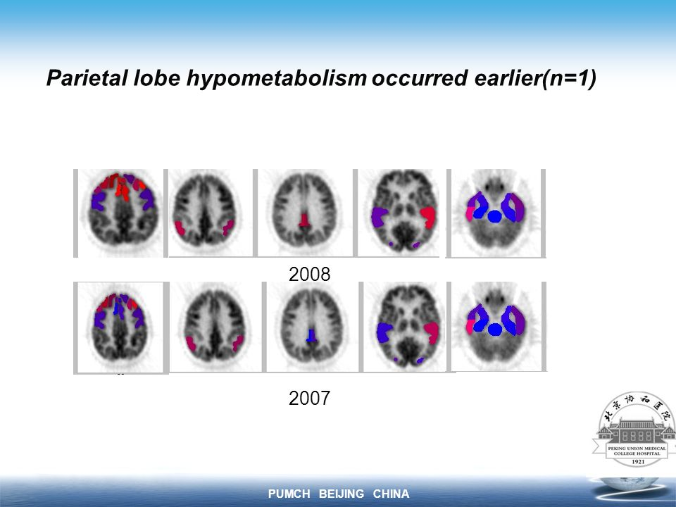 PUMCH BEIJING CHINA Parietal lobe hypometabolism occurred earlier(n=1)