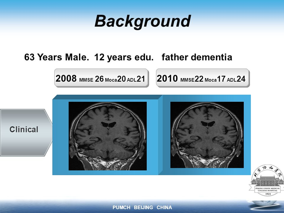 PUMCH BEIJING CHINA Background MMSE MOCA ADL Clinical 2008 MMSE 26 Moca 20 ADL MMSE 22 Moca 17 ADL 24 Spatial disorientation confabulation Acalculia Memory disturbance mild disorientation 63 Years Male.