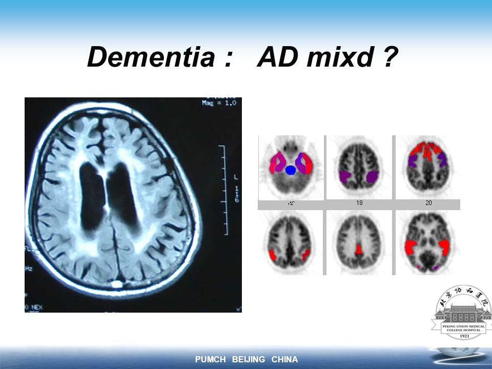 PUMCH BEIJING CHINA Dementia : AD mixd