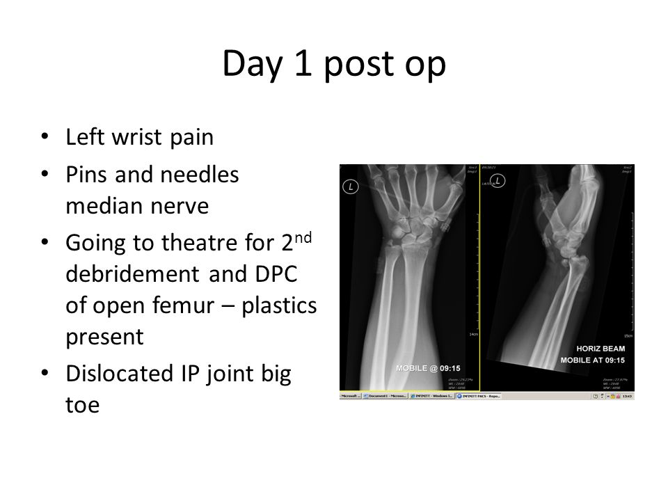 Day 1 post op Left wrist pain Pins and needles median nerve Going to theatre for 2 nd debridement and DPC of open femur – plastics present Dislocated