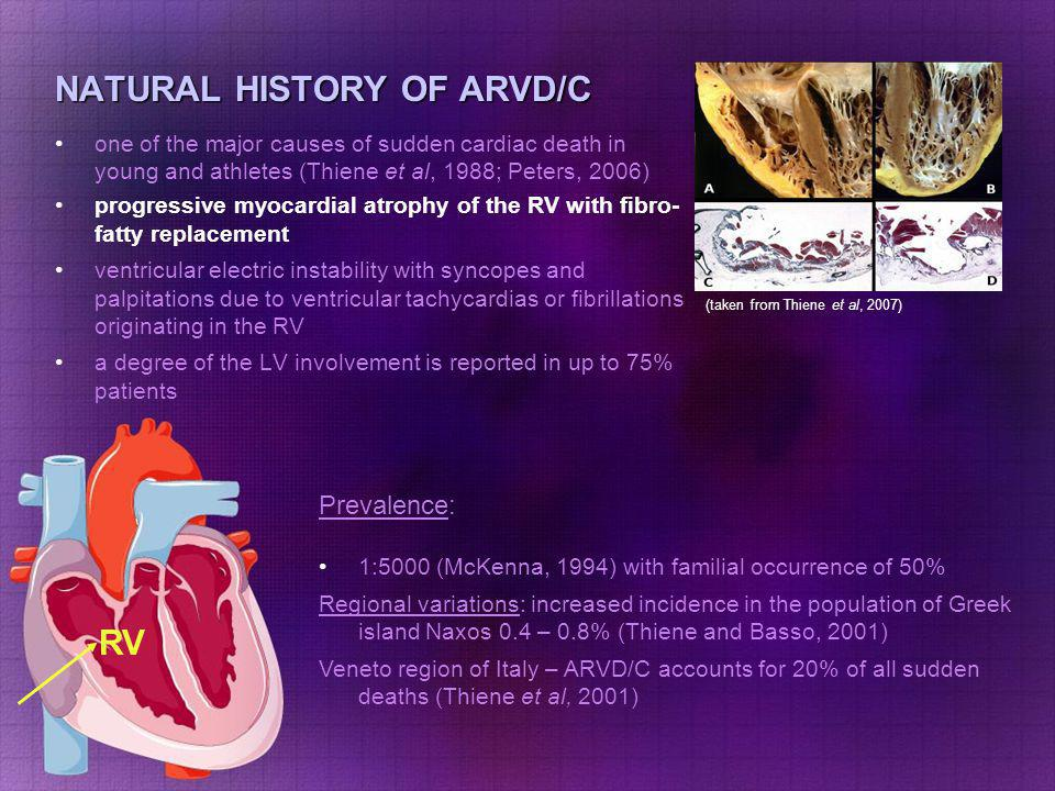 NATURAL HISTORY OF ARVD/C one of the major causes of sudden cardiac death in young and athletes (Thiene et al, 1988; Peters, 2006) progressive myocardial atrophy of the RV with fibro-fatty replacement ventricular electric instability with syncopes and palpitations due to ventricular tachycardias or fibrillations originating in the RV a degree of the LV involvement is reported in up to 75% patients RV Prevalence: 1:5000 (McKenna, 1994) with familial occurrence of 50% Regional variations: increased incidence in the population of Greek island Naxos 0.4 – 0.8% (Thiene and Basso, 2001) Veneto region of Italy – ARVD/C accounts for 20% of all sudden deaths (Thiene et al, 2001) (taken from http://ourworld.compuserve.com/home pages/arvc)