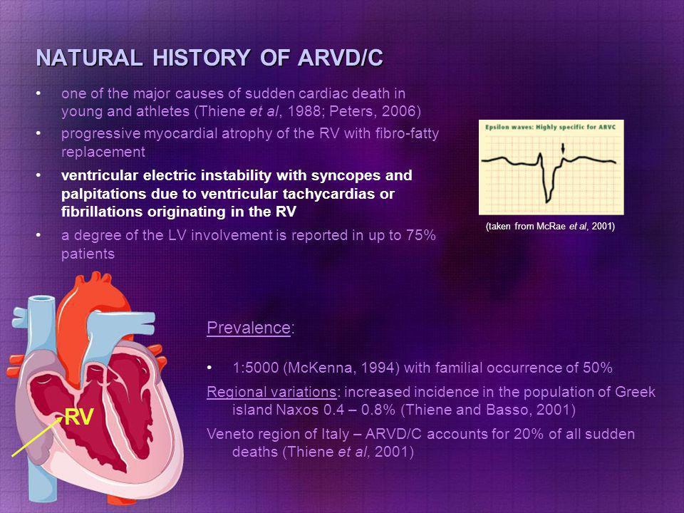 NATURAL HISTORY OF ARVD/C one of the major causes of sudden cardiac death in young and athletes (Thiene et al, 1988; Peters, 2006) progressive myocardial atrophy of the RV with fibro-fatty replacement ventricular electric instability with syncopes and palpitations due to ventricular tachycardias or fibrillations originating in the RV a degree of the LV involvement is reported in up to 75% patients RV Prevalence: 1:5000 (McKenna, 1994) with familial occurrence of 50% Regional variations: increased incidence in the population of Greek island Naxos 0.4 – 0.8% (Thiene and Basso, 2001) Veneto region of Italy – ARVD/C accounts for 20% of all sudden deaths (Thiene et al, 2001) (taken from http://en.wikipedia.org/wiki/Left_ bundle_branch_block)