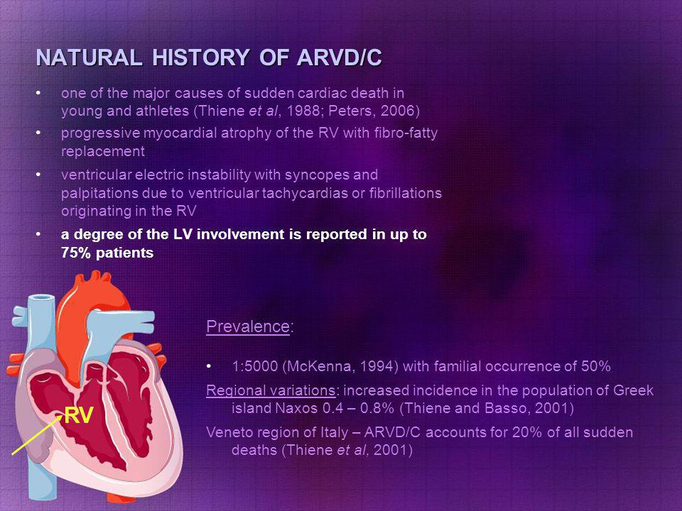 NATURAL HISTORY OF ARVD/C one of the major causes of sudden cardiac death in young and athletes (Thiene et al, 1988; Peters, 2006) progressive myocard