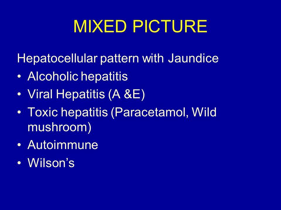 MIXED PICTURE Hepatocellular pattern with Jaundice Alcoholic hepatitis Viral Hepatitis (A &E) Toxic hepatitis (Paracetamol, Wild mushroom) Autoimmune Wilson's