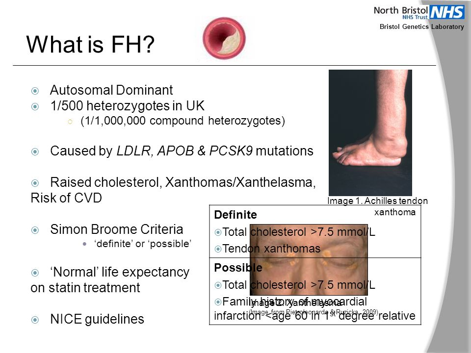 What is FH?  Autosomal Dominant  1/500 heterozygotes in UK ○ (1/1,000,000 compound heterozygotes)  Caused by LDLR, APOB & PCSK9 mutations  Raised