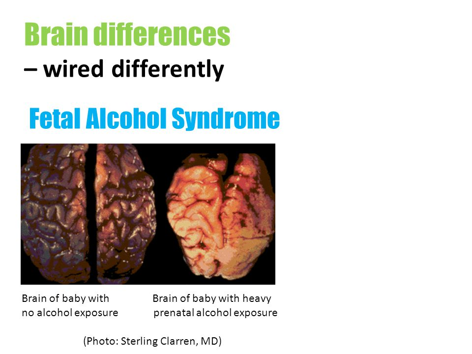 Brain differences – wired differently Fetal Alcohol Syndrome Brain of baby with Brain of baby with heavy no alcohol exposure prenatal alcohol exposure (Photo: Sterling Clarren, MD)