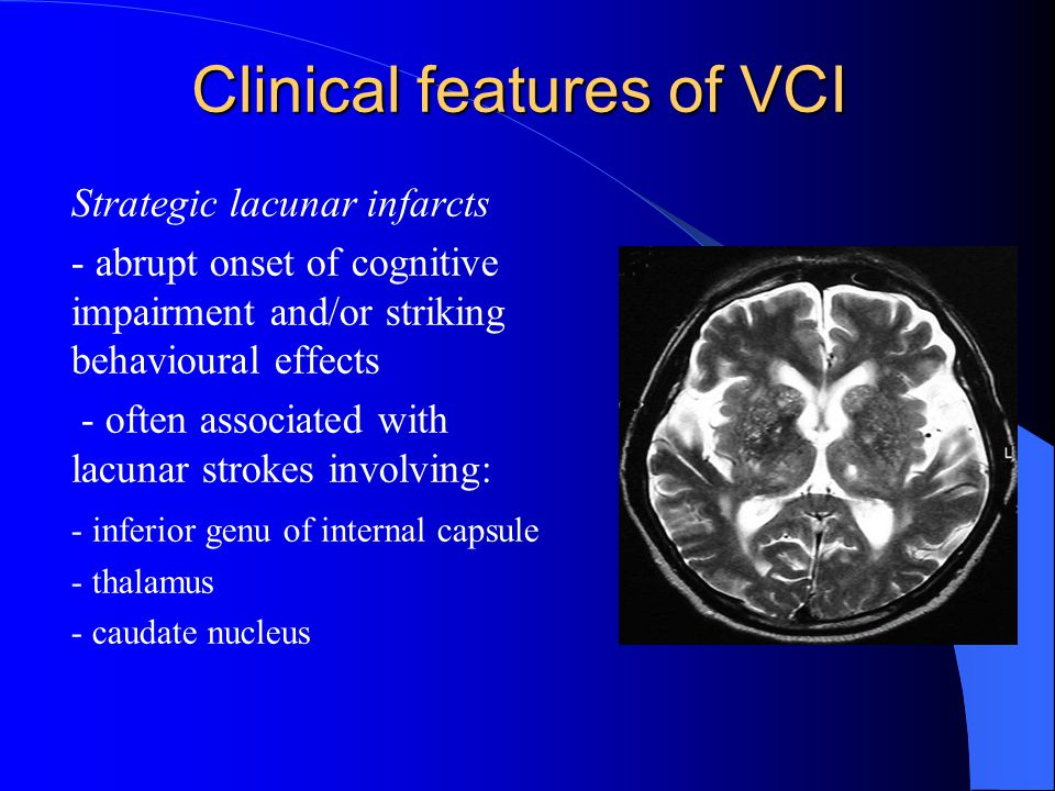 Clinical features of VCI Strategic lacunar infarcts - abrupt onset of cognitive impairment and/or striking behavioural effects - often associated with