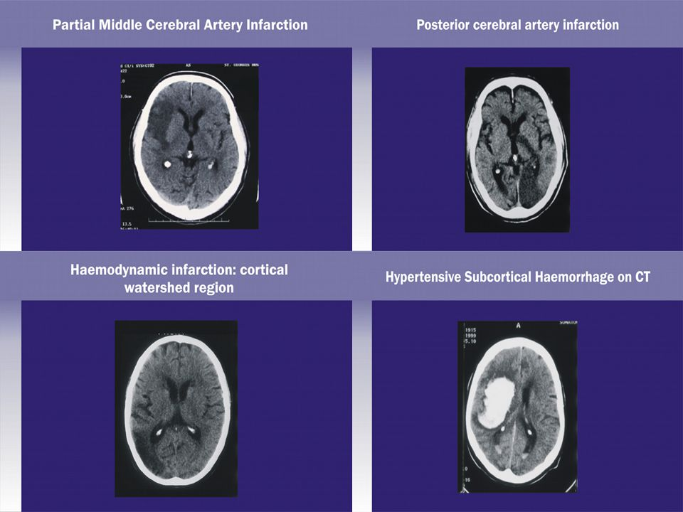 These clinical manifestations result from: cortical-subcortical and corticocortical disconnection, due to white matter tract disruption, compromising the integration of information from large-scale neural networks
