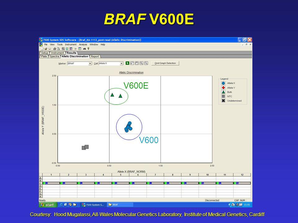 BRAF V600E Courtesy: Hood Mugalassi, All-Wales Molecular Genetics Laboratory, Institute of Medical Genetics, Cardiff V600E V600
