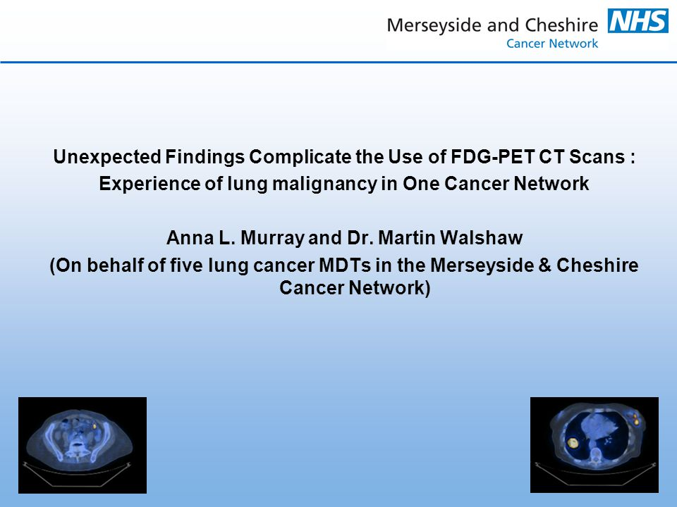 Unexpected Findings Complicate the Use of FDG-PET CT Scans : Experience of lung malignancy in One Cancer Network Anna L.