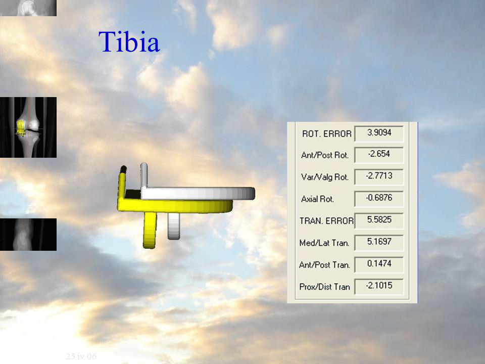 25 iv 06 Tibia