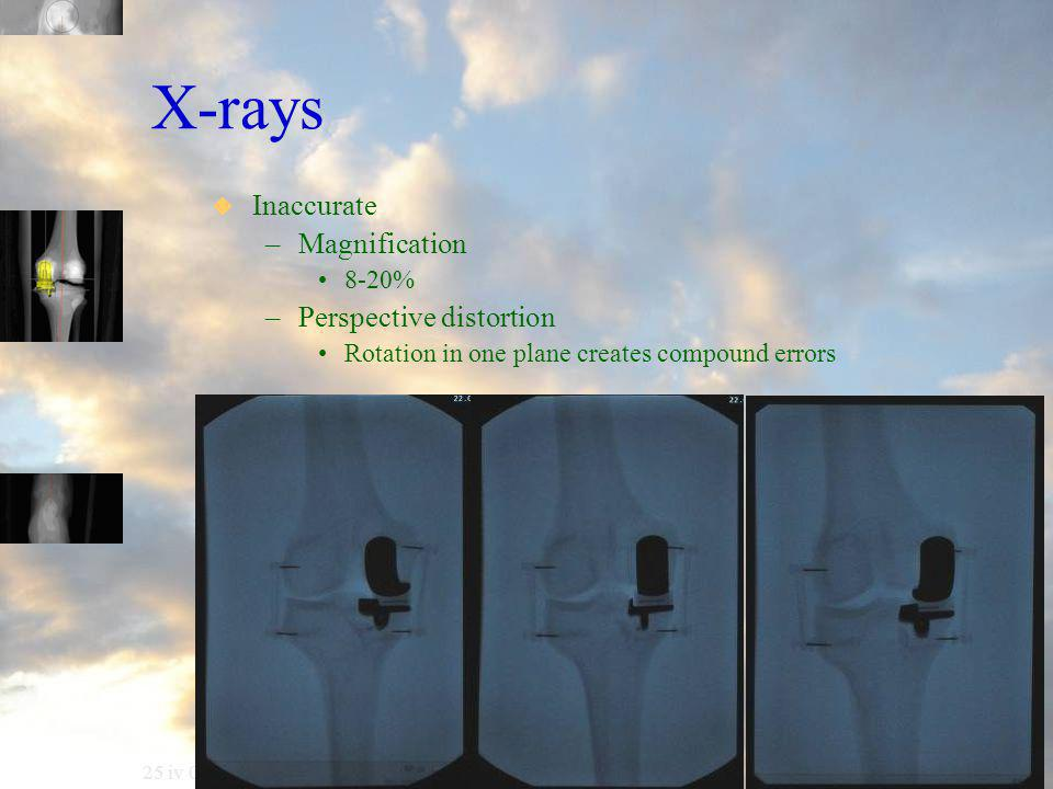 25 iv 06 X-rays  Inaccurate –Magnification 8-20% –Perspective distortion Rotation in one plane creates compound errors