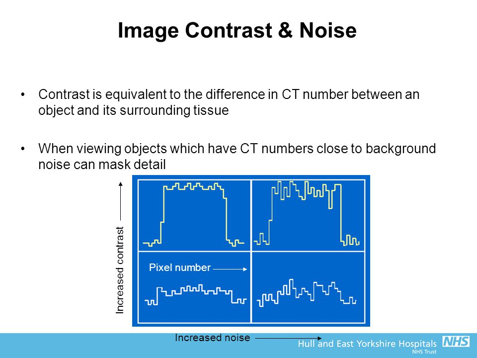 Image Contrast & Noise Contrast is equivalent to the difference in CT number between an object and its surrounding tissue When viewing objects which have CT numbers close to background noise can mask detail Increased noise Increased contrast Pixel number