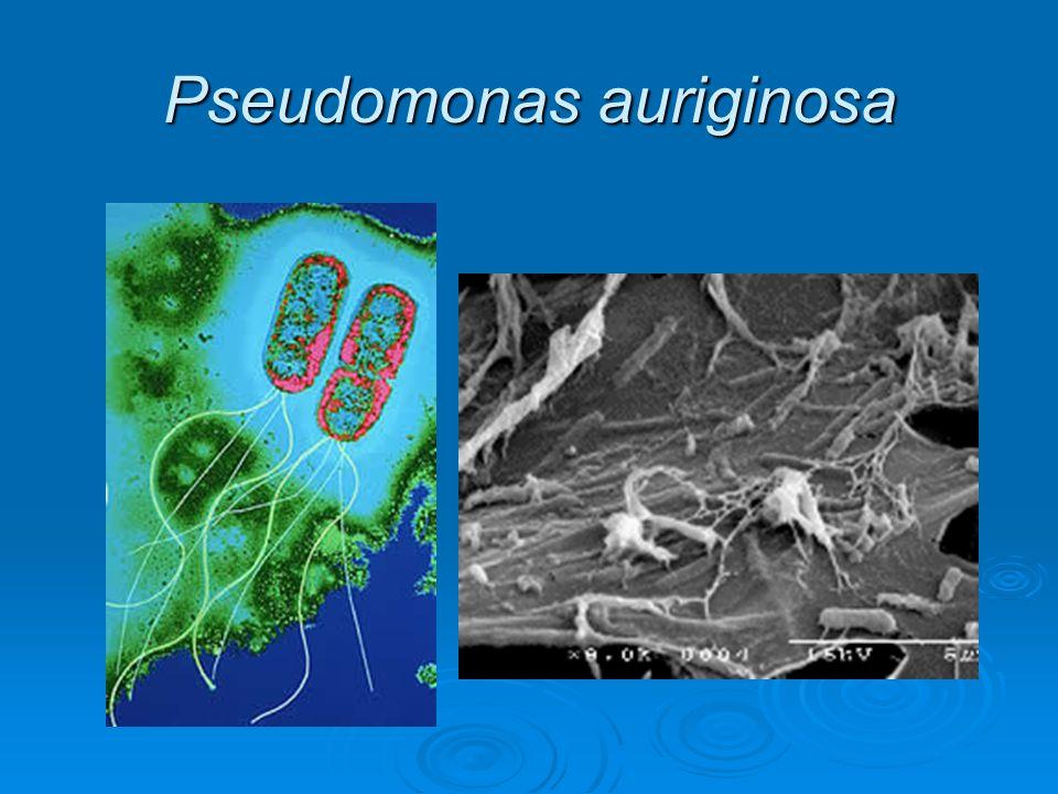 Pseudomonas auriginosa